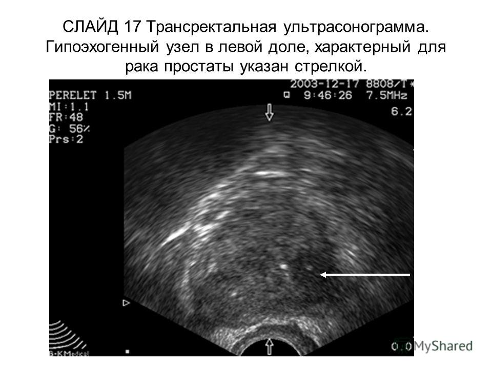 СЛАЙД 17 Трансректальная ультрасонограмма. Гипоэхогенный узел в левой доле, характерный для рака простаты указан стрелкой.