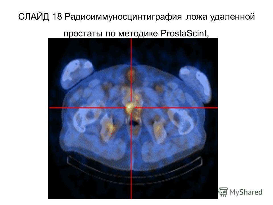 СЛАЙД 18 Радиоиммуносцинтиграфия ложа удаленной простаты по методике ProstaScint,