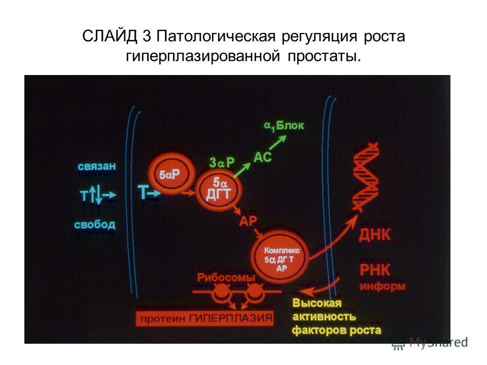СЛАЙД 3 Патологическая регуляция роста гиперплазированной простаты.