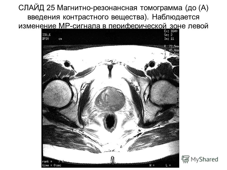 СЛАЙД 25 Магнитно-резонансная томограмма (до (А) введения контрастного вещества). Наблюдается изменение МР-сигнала в периферической зоне левой доли простаты.