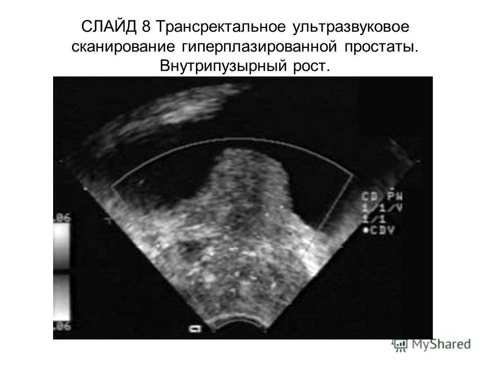 СЛАЙД 8 Трансректальное ультразвуковое сканирование гиперплазированной простаты. Внутрипузырный рост.