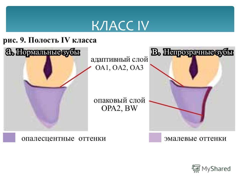 КЛАСС IV