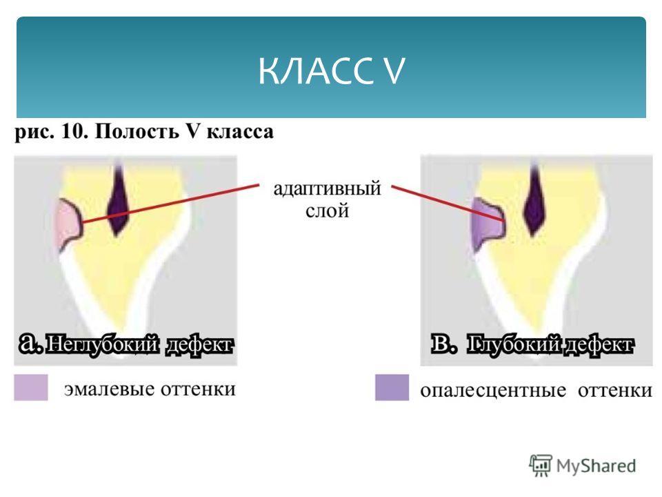 КЛАСС V