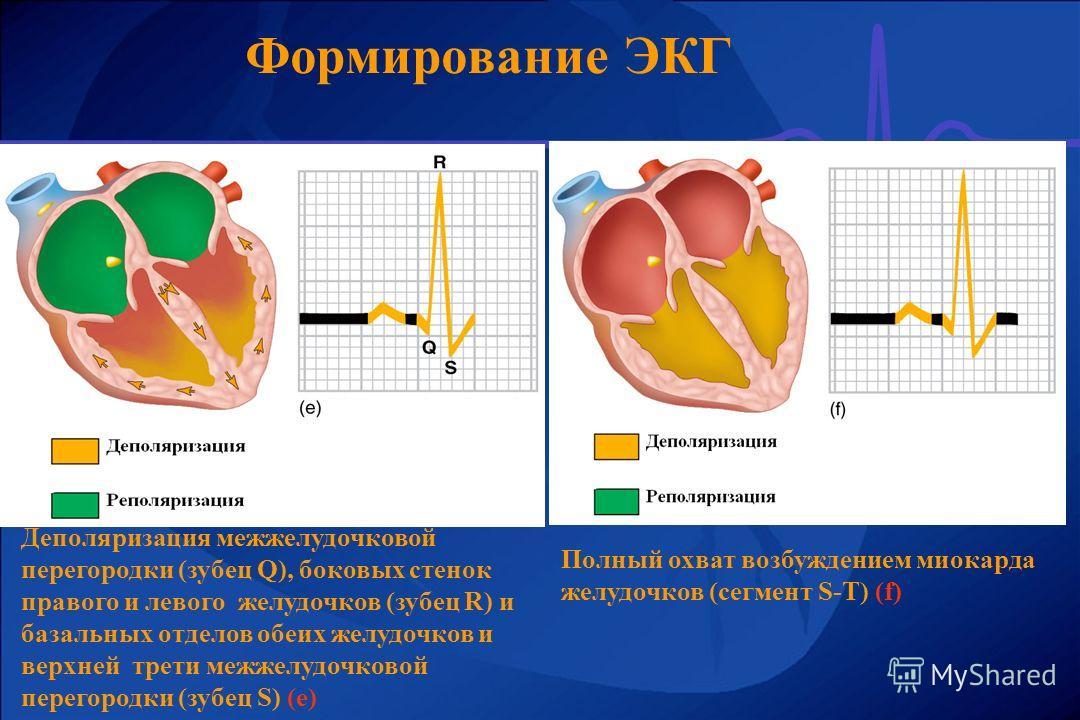 Формирование ЭКГ Деполяризация межжелудочковой перегородки (зубец Q), боковых стенок правого и левого желудочков (зубец R) и базальных отделов обеих желудочков и верхней трети межжелудочковой перегородки (зубец S) (e) Полный охват возбуждением миокар
