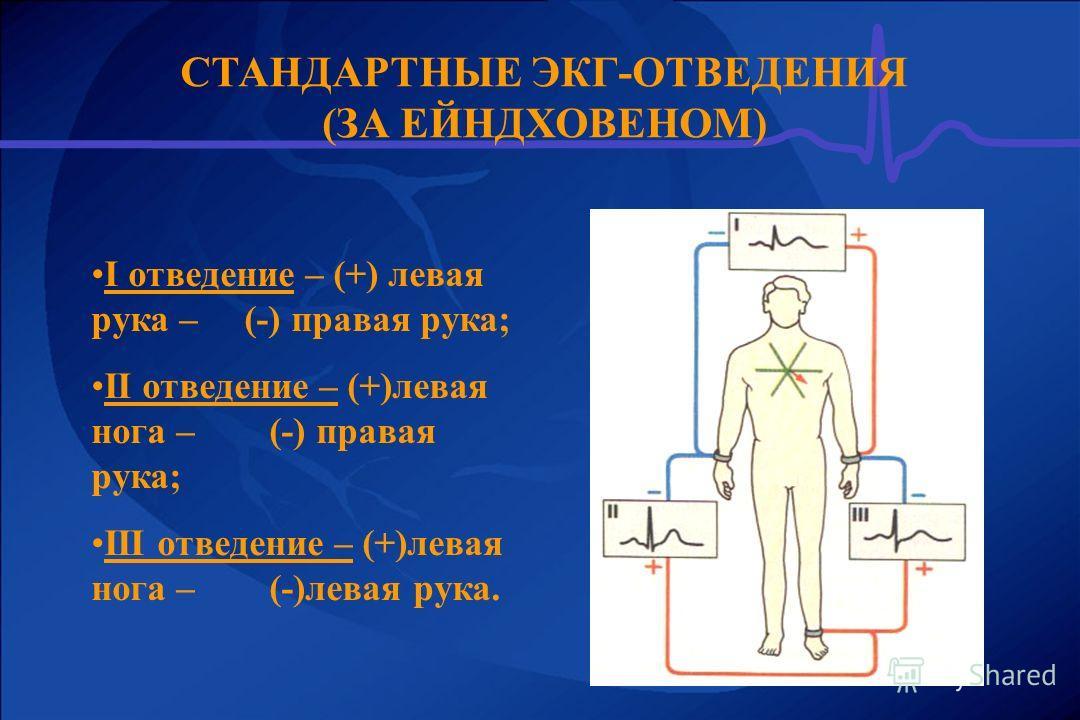 СТАНДАРТНЫЕ ЭКГ-ОТВЕДЕНИЯ (ЗА ЕЙНДХОВЕНОМ) I отведение – (+) левая рука – (-) правая рука; ІІ отведение – (+)левая нога – (-) правая рука; ІІІ отведение – (+)левая нога – (-)левая рука.