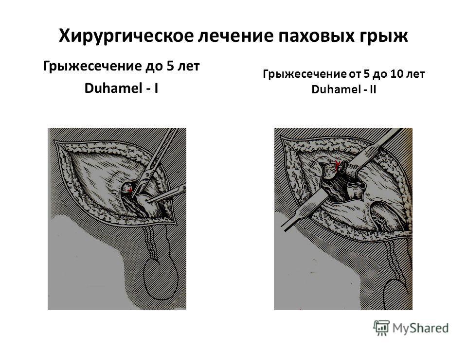 Хирургическое лечение паховых грыж Грыжесечение до 5 лет Duhamel - I Грыжесечение от 5 до 10 лет Duhamel - II