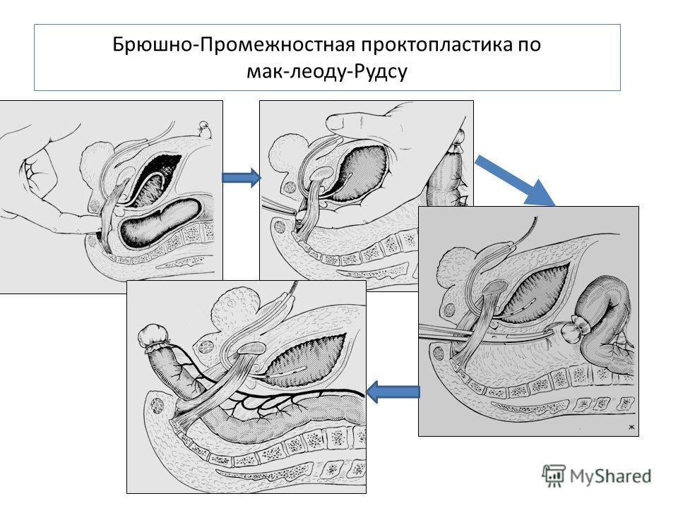 Брюшно-Промежностная проктопластика по мак-леоду-Рудсу