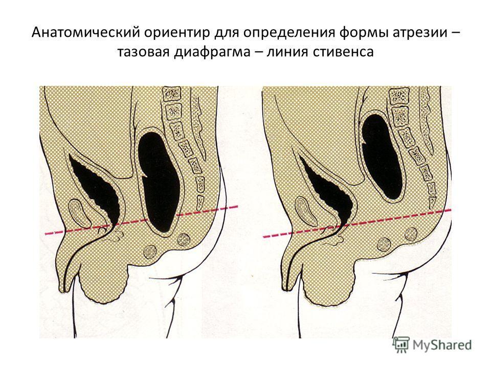 Анатомический ориентир для определения формы атрезии – тазовая диафрагма – линия стивенса