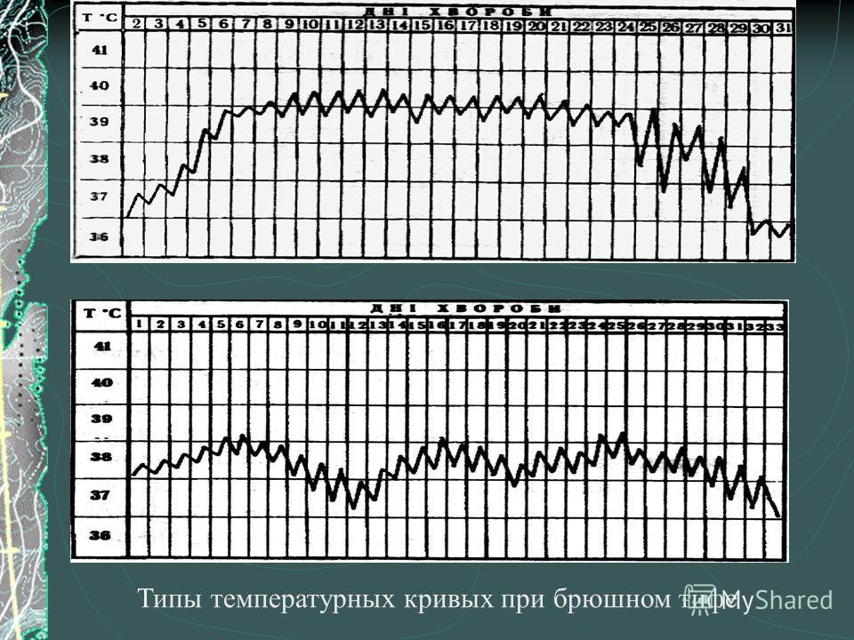Типы температурных кривых при брюшном тифе
