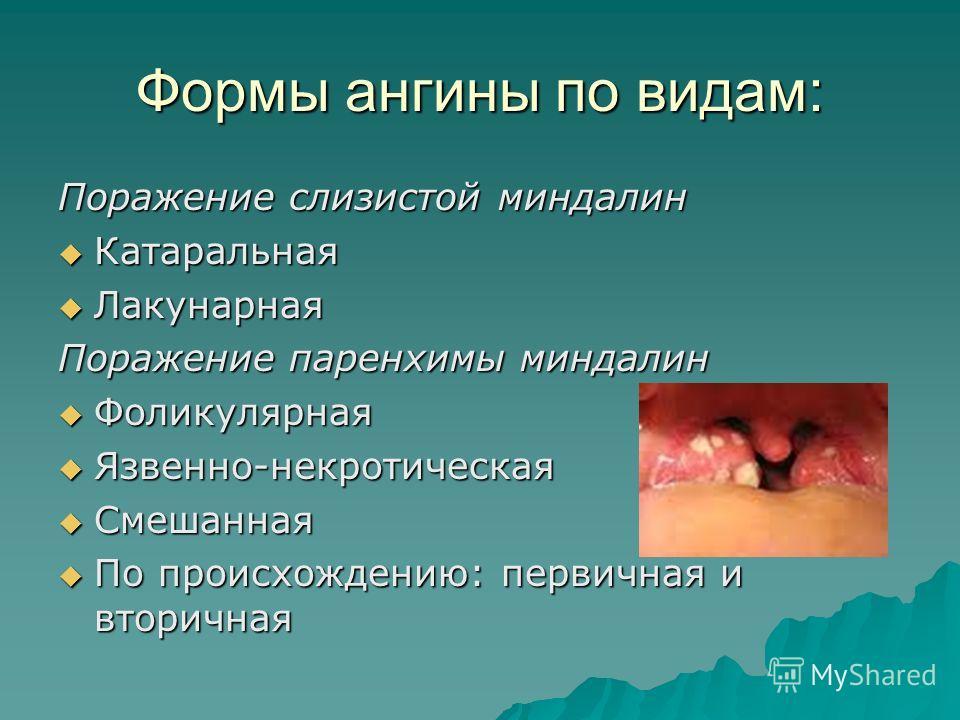 Катаральный бронхит симптомы