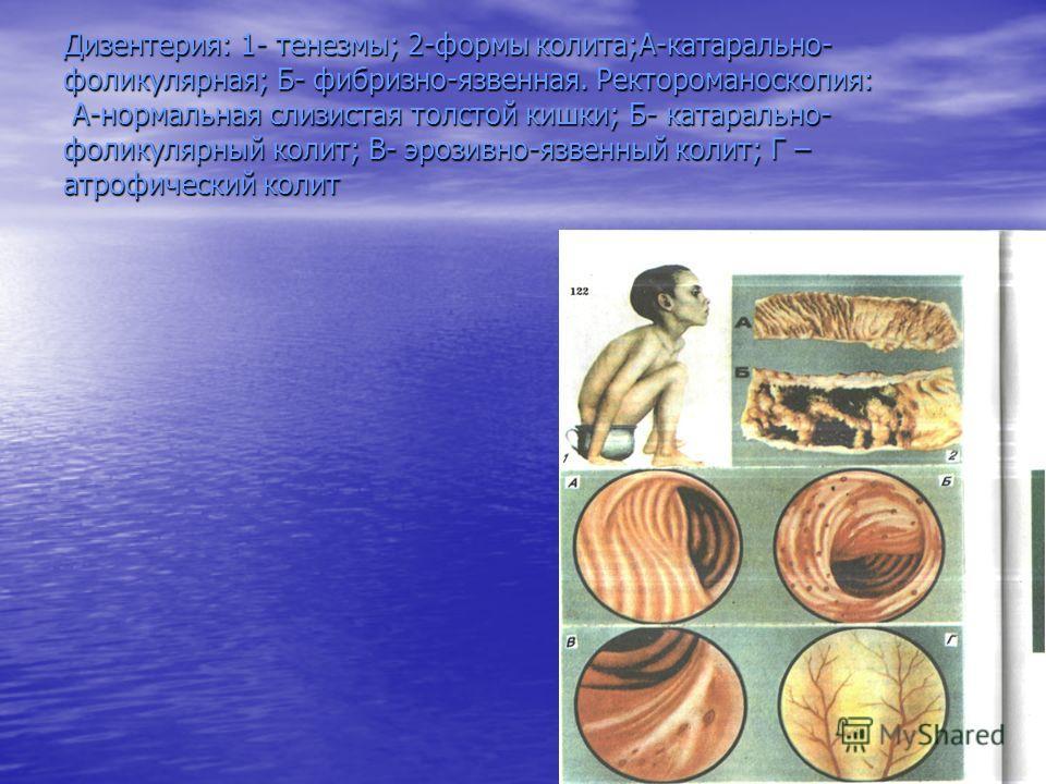Дизентерия: 1- тенезмы; 2-формы колита;А-катарально- фоликулярная; Б- фибризно-язвенная. Ректороманоскопия: А-нормальная слизистая толстой кишки; Б- катарально- фоликулярный колит; В- эрозивно-язвенный колит; Г – атрофический колит