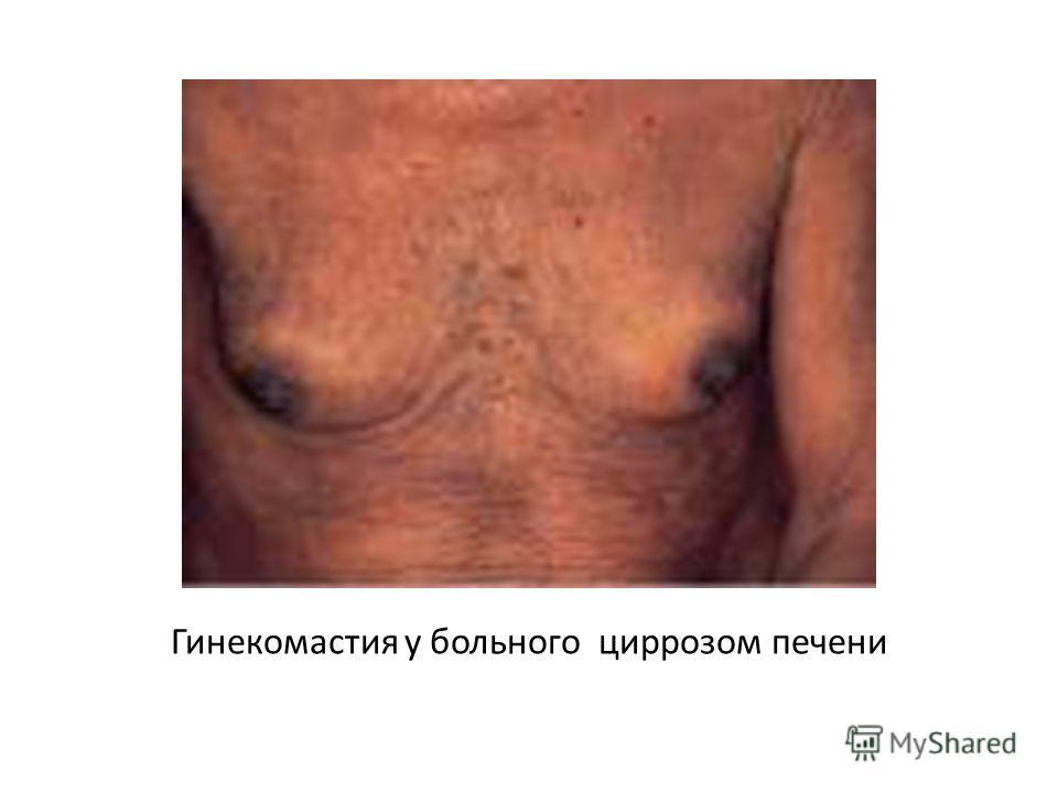 Гинекомастия у больного циррозом печени