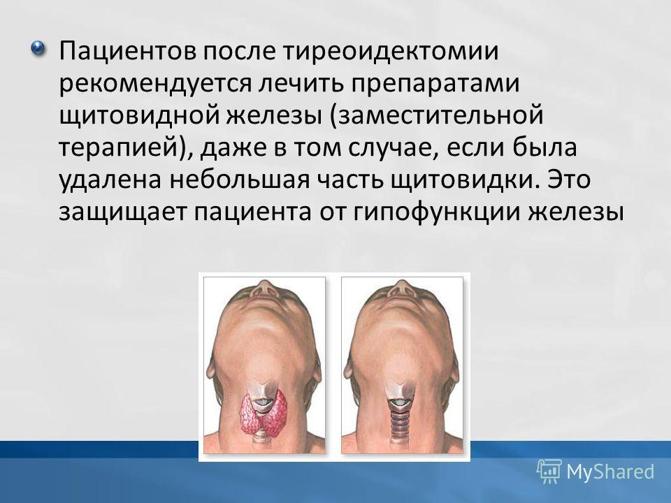 Пациентов после тиреоидектомии рекомендуется лечить препаратами щитовидной железы (заместительной терапией), даже в том случае, если была удалена небольшая часть щитовидки. Это защищает пациента от гипофункции железы
