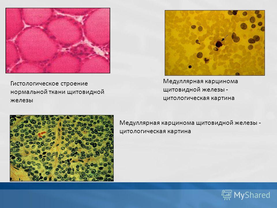 Гистологическое строение нормальной ткани щитовидной железы Медуллярная карцинома щитовидной железы - цитологическая картина