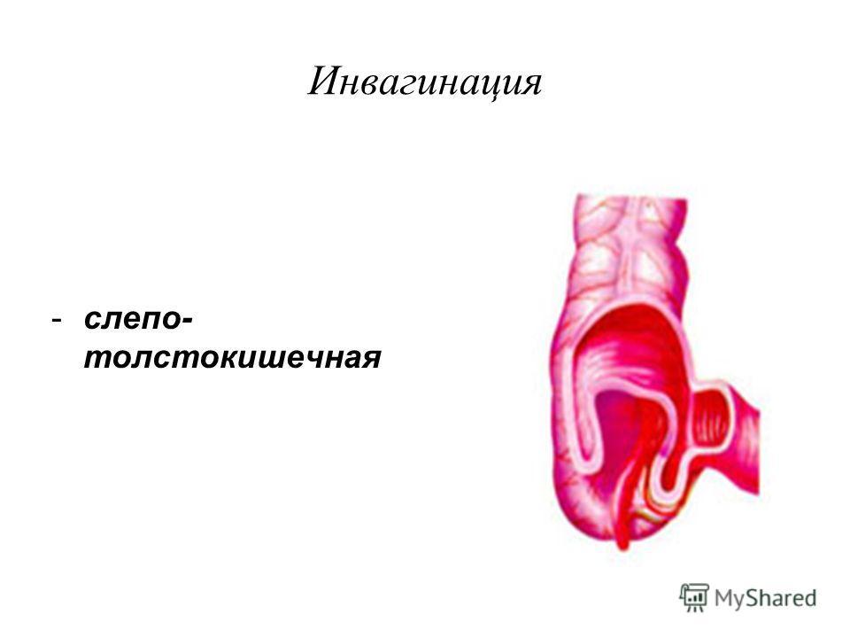 Инвагинация -слепо- толстокишечная