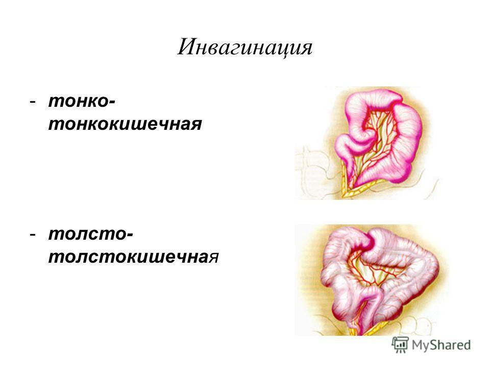Инвагинация -тонко- тонкокишечная -толсто- толстокишечная