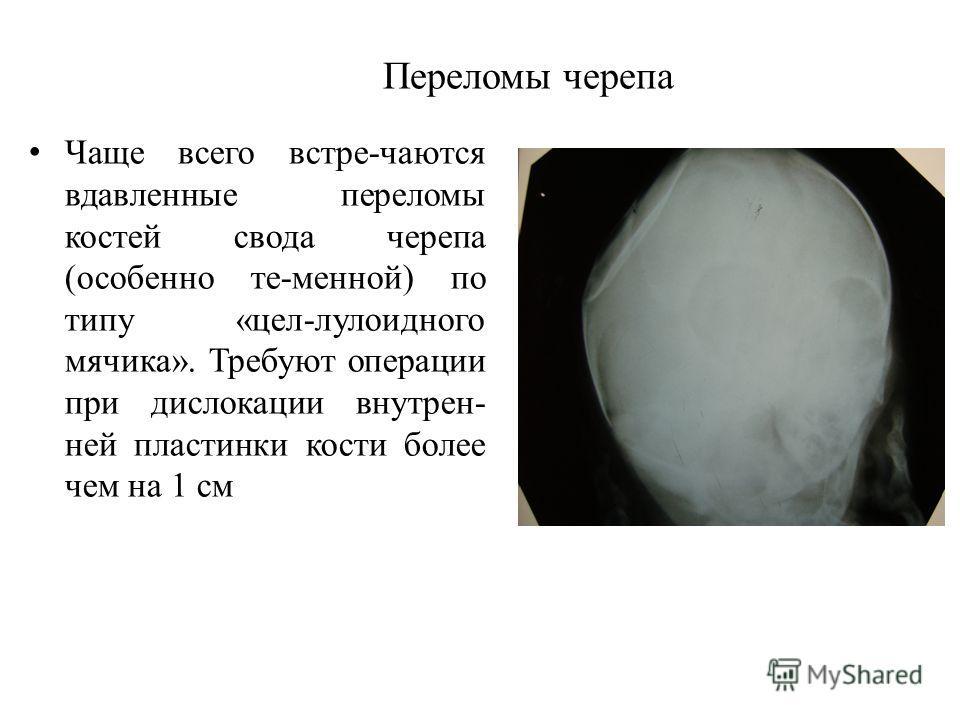 Переломы черепа Чаще всего встре-чаются вдавленные переломы костей свода черепа (особенно те-менной) по типу «цел-лулоидного мячика». Требуют операции при дислокации внутрен- ней пластинки кости более чем на 1 см