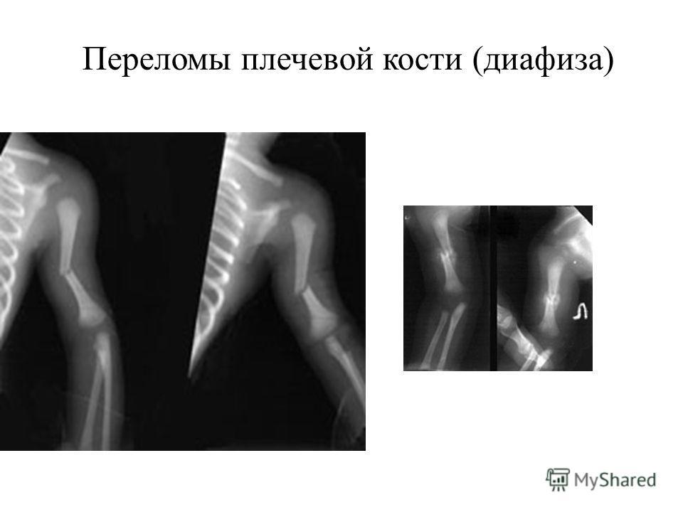 Переломы плечевой кости (диафиза)