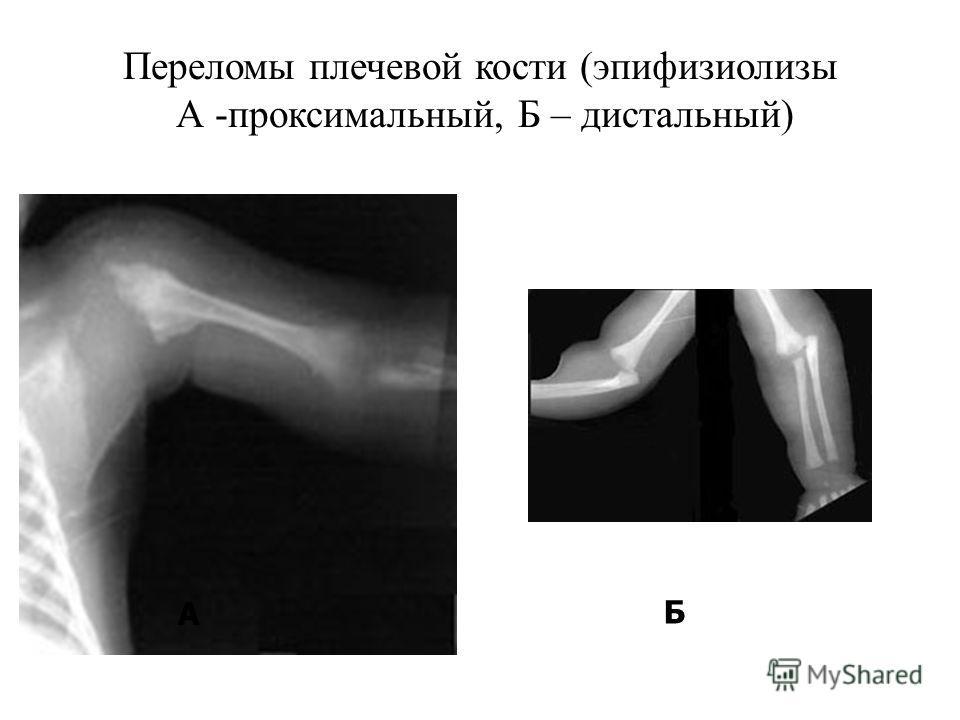 Переломы плечевой кости (эпифизиолизы А -проксимальный, Б – дистальный) А Б