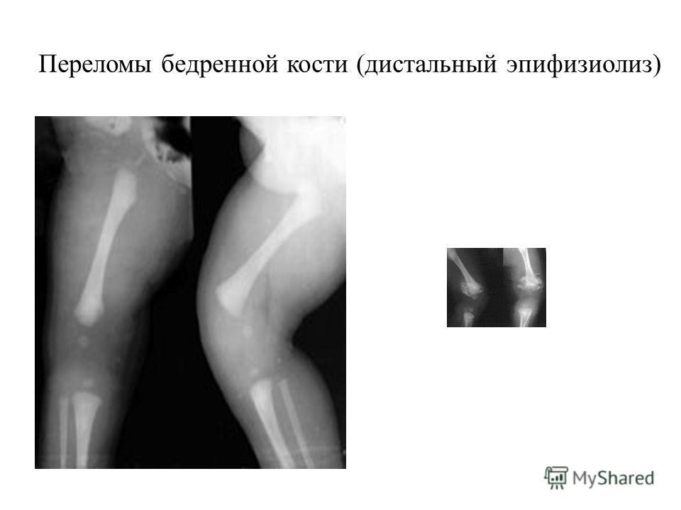 Переломы бедренной кости (дистальный эпифизиолиз)