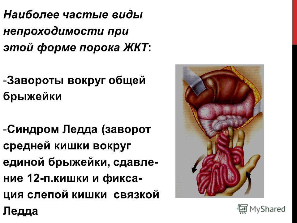 Наиболее частые виды непроходимости при этой форме порока ЖКТ: -Завороты вокруг общей брыжейки -Синдром Ледда (заворот средней кишки вокруг единой брыжейки, сдавле- ние 12-п.кишки и фикса- ция слепой кишки связкой Ледда