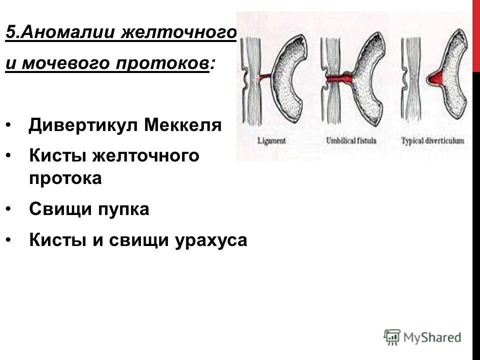 5.Аномалии желточного и мочевого протоков: Дивертикул Меккеля Кисты желточного протока Свищи пупка Кисты и свищи урахуса