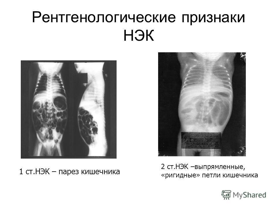 Рентгенологические признаки НЭК 1 ст.НЭК – парез кишечника 2 ст.НЭК –выпрямленные, «ригидные» петли кишечника