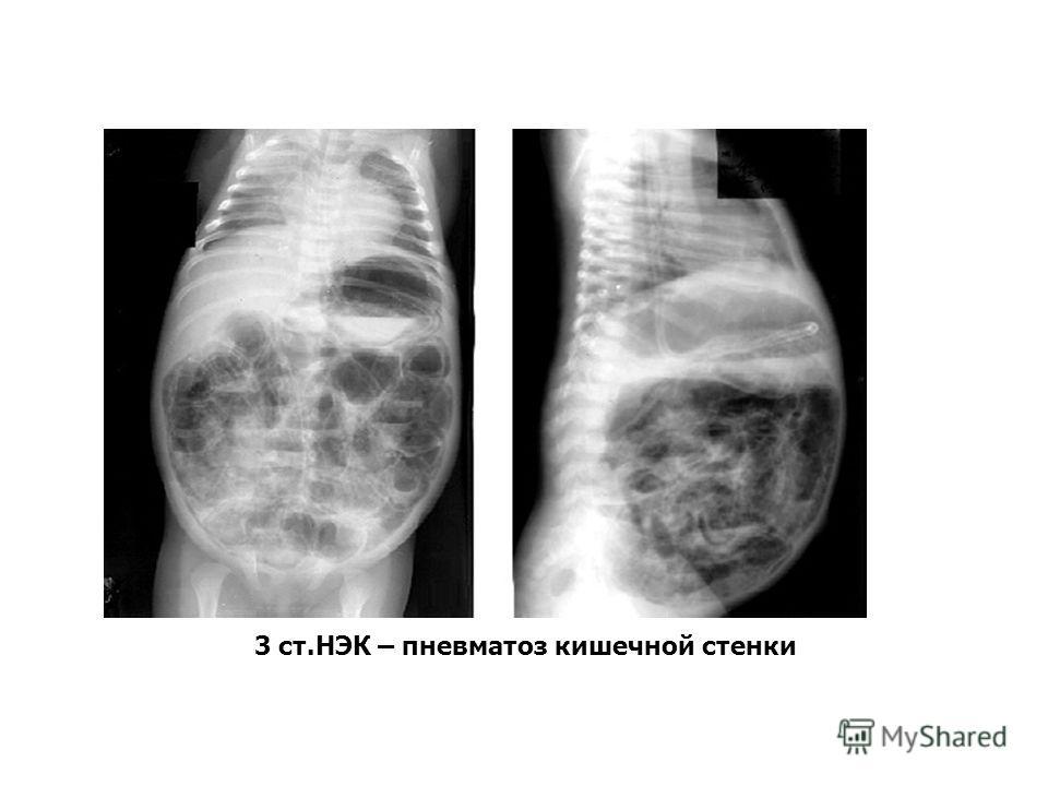 3 ст.НЭК – пневматоз кишечной стенки
