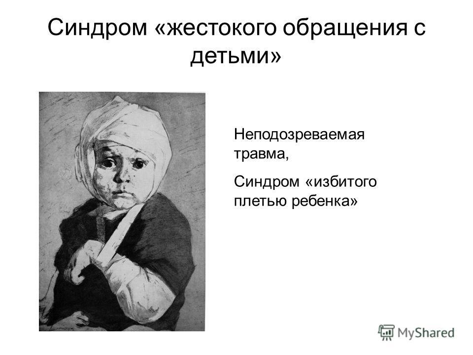 Синдром Избитого Ребенка фото