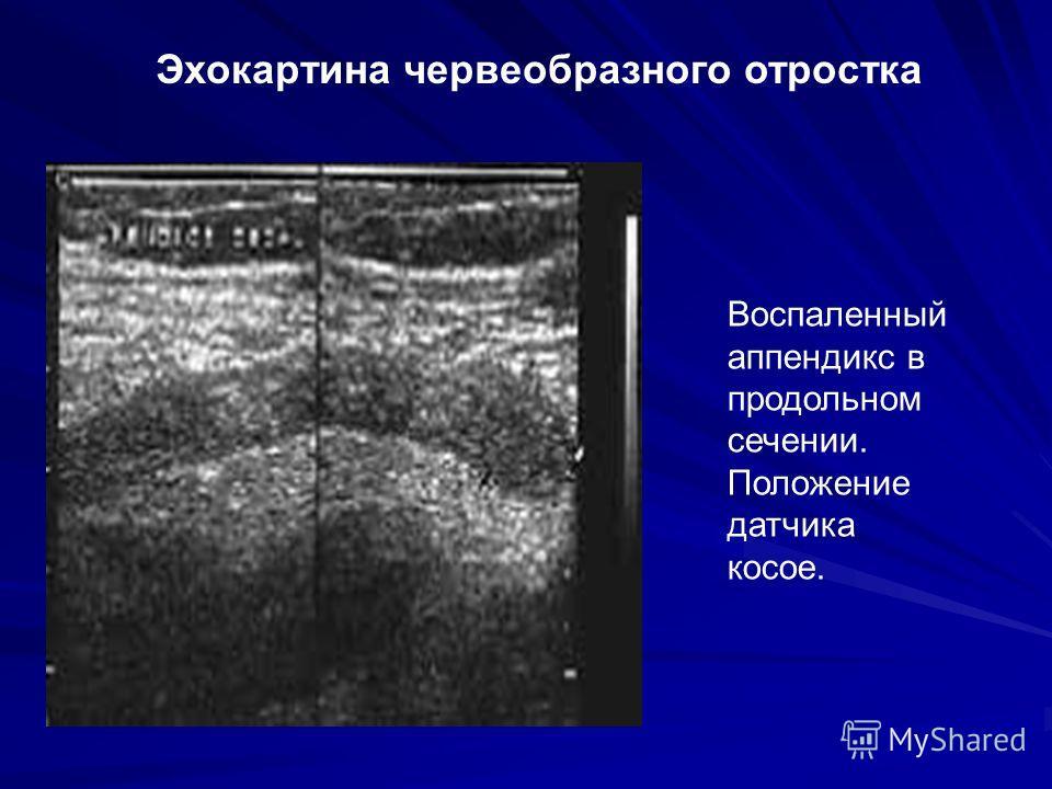 Воспаленный аппендикс в продольном сечении. Положение датчика косое. Эхокартина червеобразного отростка