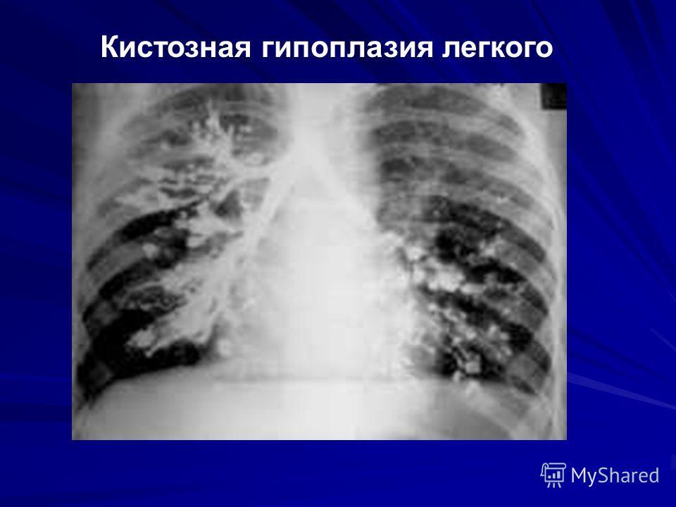 Кистозная гипоплазия легкого