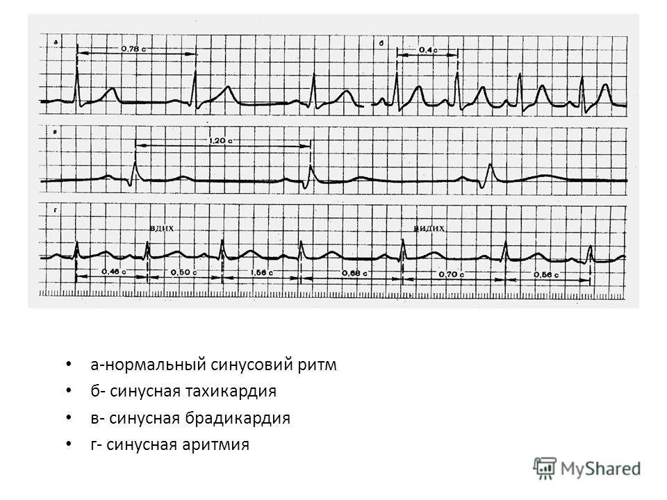 а-нормальный синусовий ритм б- синусная тахикардия в- синусная брадикардия г- синусная аритмия