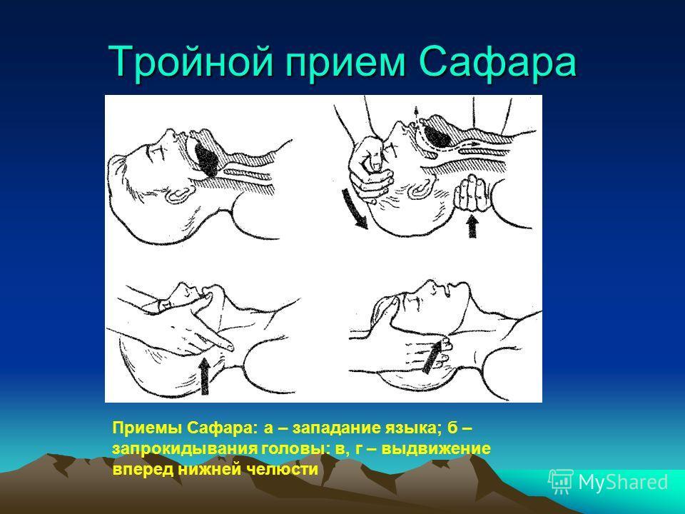 Тройной прием Сафара Приемы Сафара: а – западание языка; б – запрокидывания головы: в, г – выдвижение вперед нижней челюсти