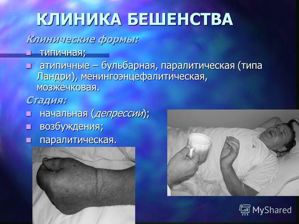 КЛИНИКА БЕШЕНСТВА Клинические формы: типичная; типичная; атипичные – бульбарная, паралитическая (типа Ландри), менингоэнцефалитическая, мозжечковая. атипичные – бульбарная, паралитическая (типа Ландри), менингоэнцефалитическая, мозжечковая.Стадия: на