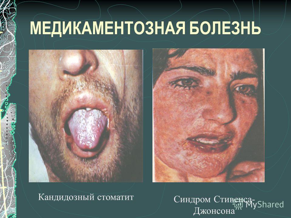 МЕДИКАМЕНТОЗНАЯ БОЛЕЗНЬ Кандидозный стоматит Синдром Стивенса- Джонсона