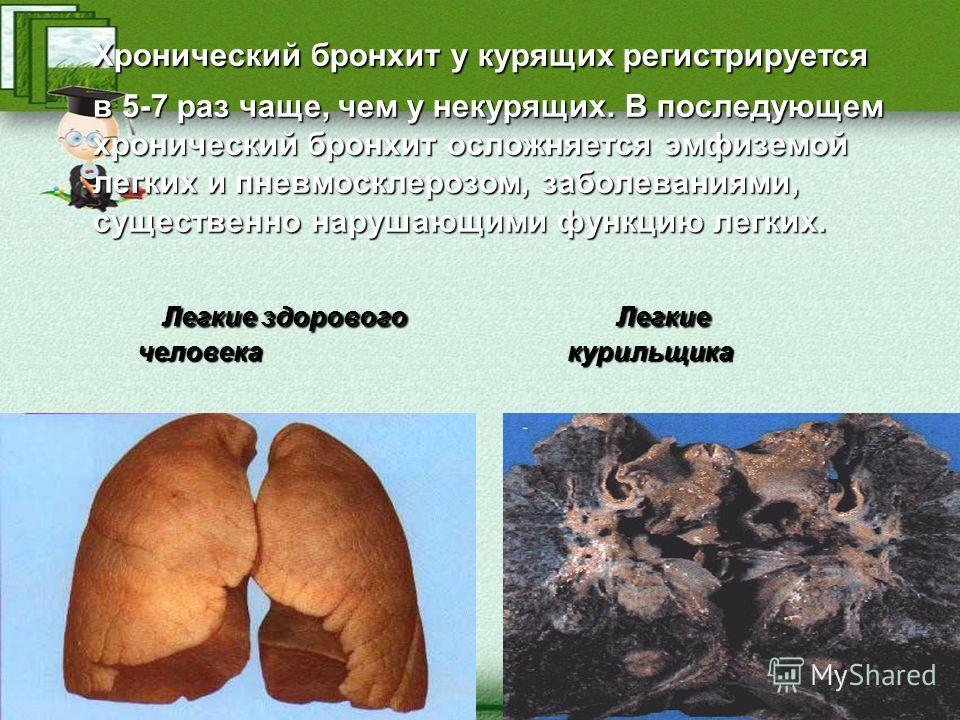 Хронический бронхит у курящих регистрируется Хронический бронхит у курящих регистрируется в 5-7 раз чаще, чем у некурящих. В последующем хронический бронхит осложняется эмфиземой легких и пневмосклерозом, заболеваниями, существенно нарушающими функци