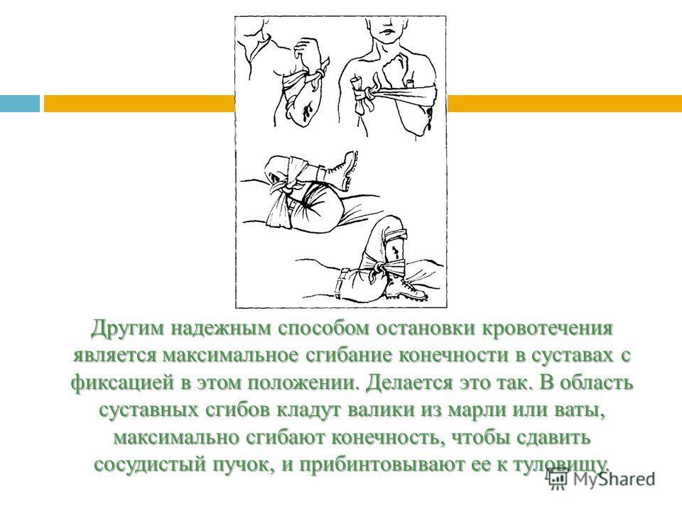 Другим надежным способом остановки кровотечения является максимальное сгибание конечности в суставах с фиксацией в этом положении. Делается это так. В область суставных сгибов кладут валики из марли или ваты, максимально сгибают конечность, чтобы сда