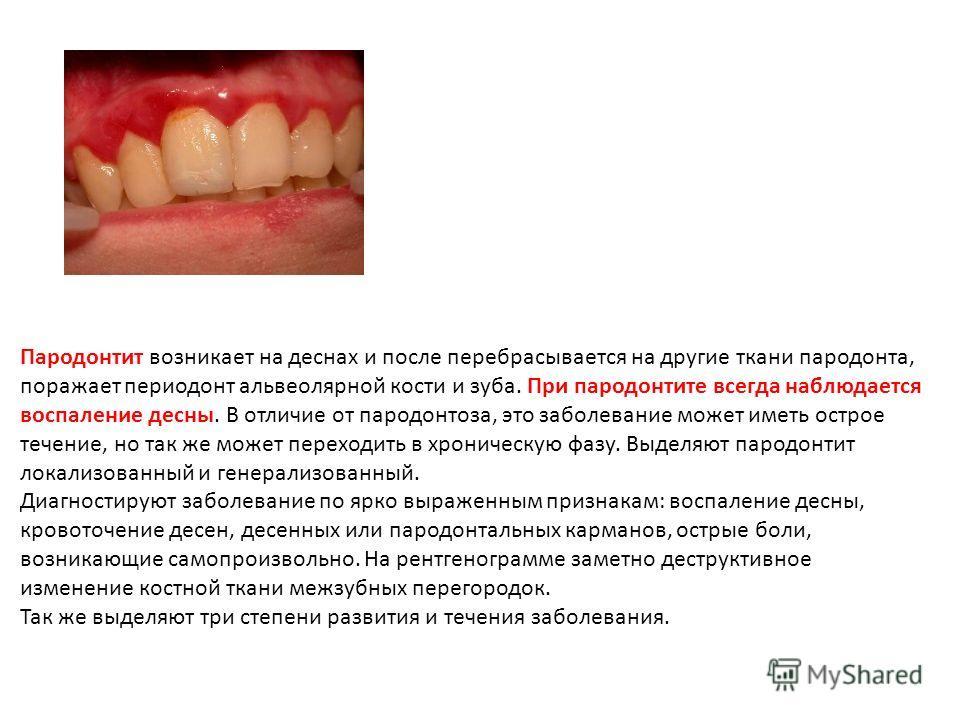 Пародонтит возникает на деснах и после перебрасывается на другие ткани пародонта, поражает периодонт альвеолярной кости и зуба. При пародонтите всегда наблюдается воспаление десны. В отличие от пародонтоза, это заболевание может иметь острое течение,
