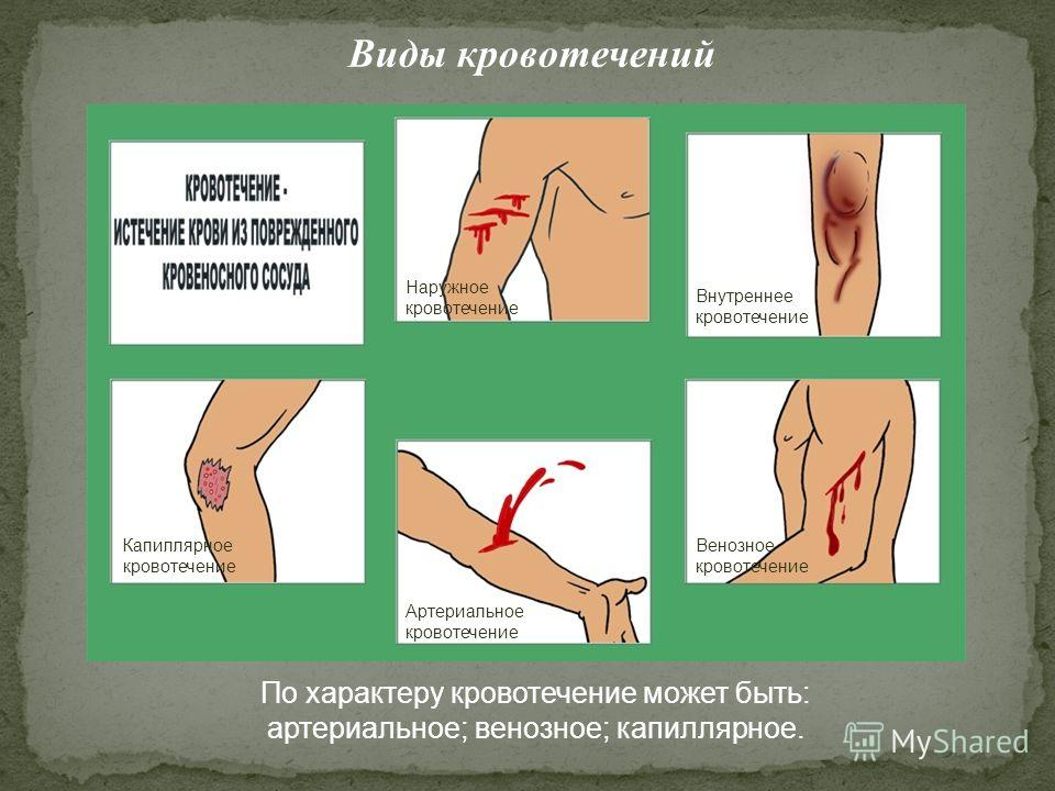 Виды кровотечений Артериальное кровотечение Венозное кровотечение Внутреннее кровотечение Капиллярное кровотечение Наружное кровотечение По характеру кровотечение может быть: артериальное; венозное; капиллярное.