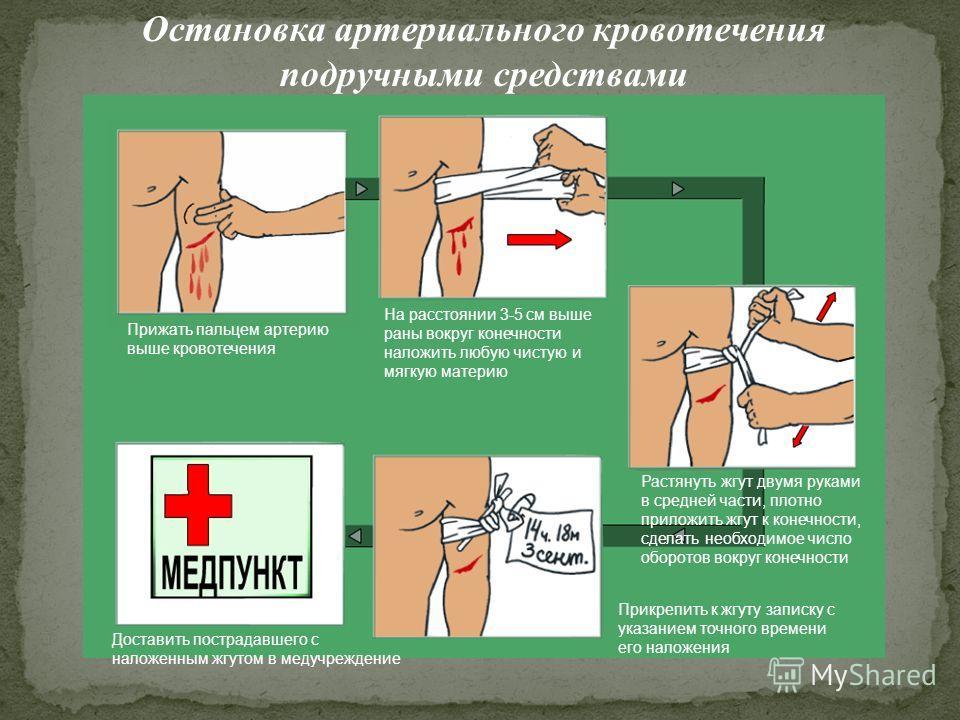 Остановка артериального кровотечения подручными средствами Прижать пальцем артерию выше кровотечения На расстоянии 3-5 см выше раны вокруг конечности наложить любую чистую и мягкую материю Доставить пострадавшего с наложенным жгутом в медучреждение Р