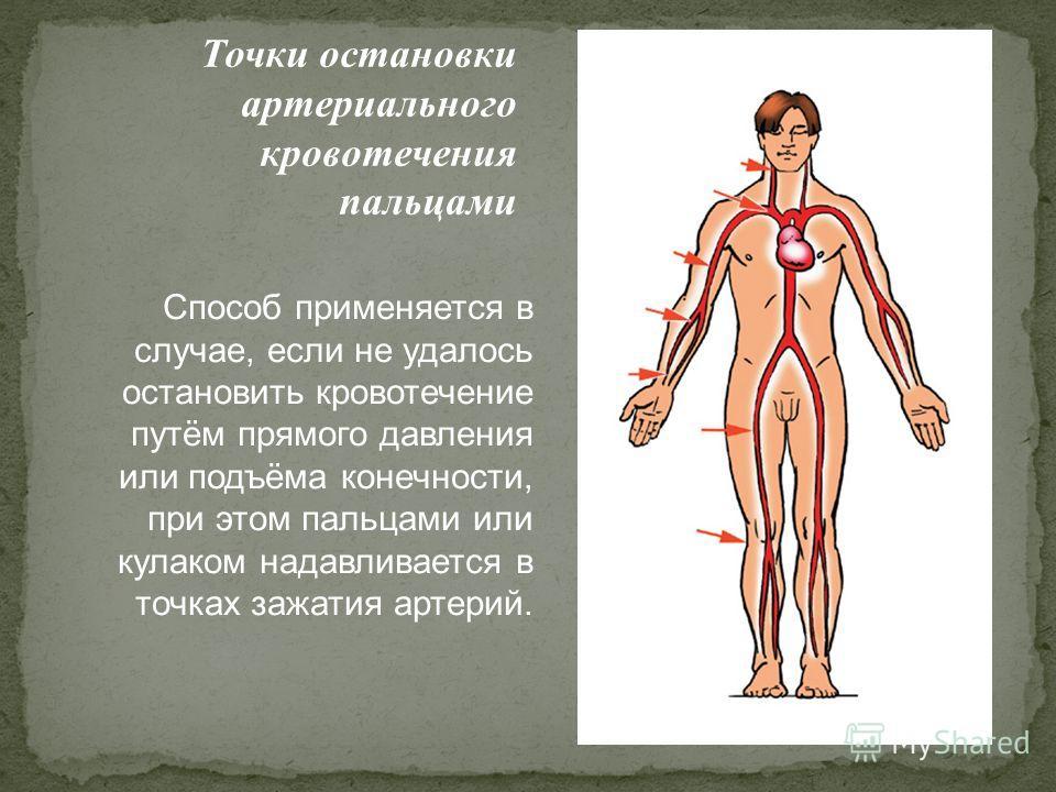Точки остановки артериального кровотечения пальцами Способ применяется в случае, если не удалось остановить кровотечение путём прямого давления или подъёма конечности, при этом пальцами или кулаком надавливается в точках зажатия артерий.