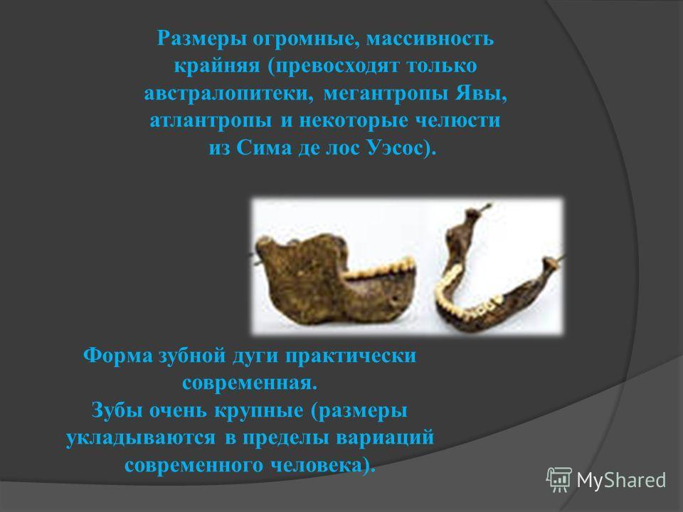 Размеры огромные, массивность крайняя (превосходят только австралопитеки, мегантропы Явы, атлантропы и некоторые челюсти из Сима де лос Уэсос). Форма зубной дуги практически современная. Зубы очень крупные (размеры укладываются в пределы вариаций сов