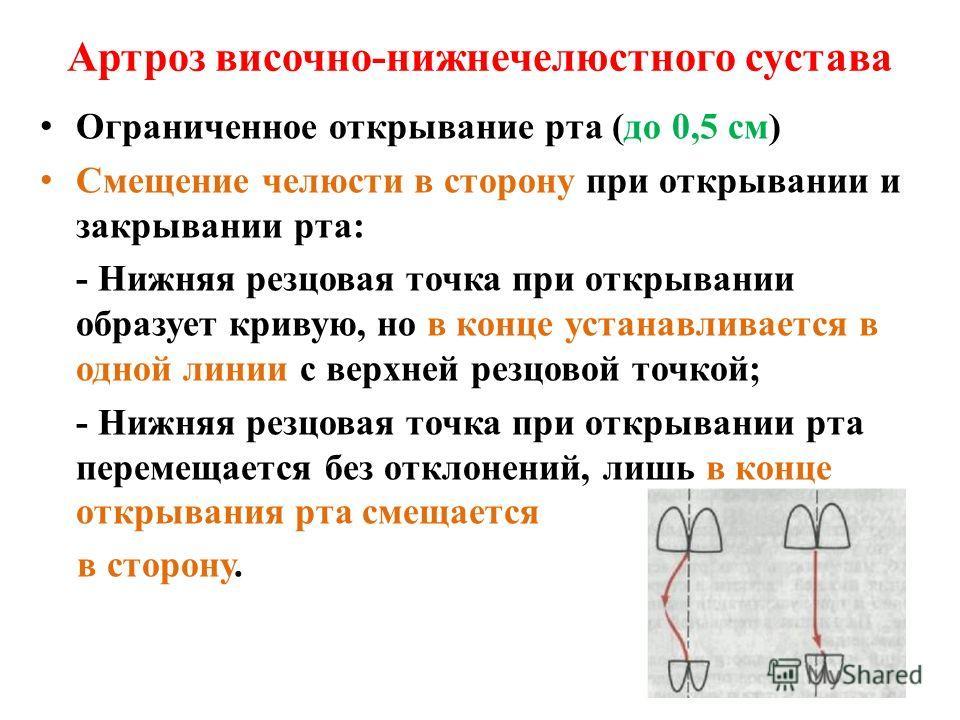 Артроз височно-нижнечелюстного сустава Ограниченное открывание рта (до 0,5 см) Смещение челюсти в сторону при открывании и закрывании рта: - Нижняя резцовая точка при открывании образует кривую, но в конце устанавливается в одной линии с верхней резц