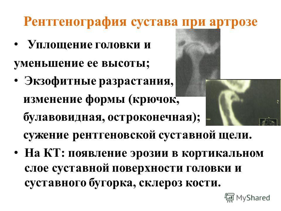 Рентгенография сустава при артрозе Уплощение головки и уменьшение ее высоты; Экзофитные разрастания, изменение формы (крючок, булавовидная, остроконечная); сужение рентгеновской суставной щели. На КТ: появление эрозии в кортикальном слое суставной по