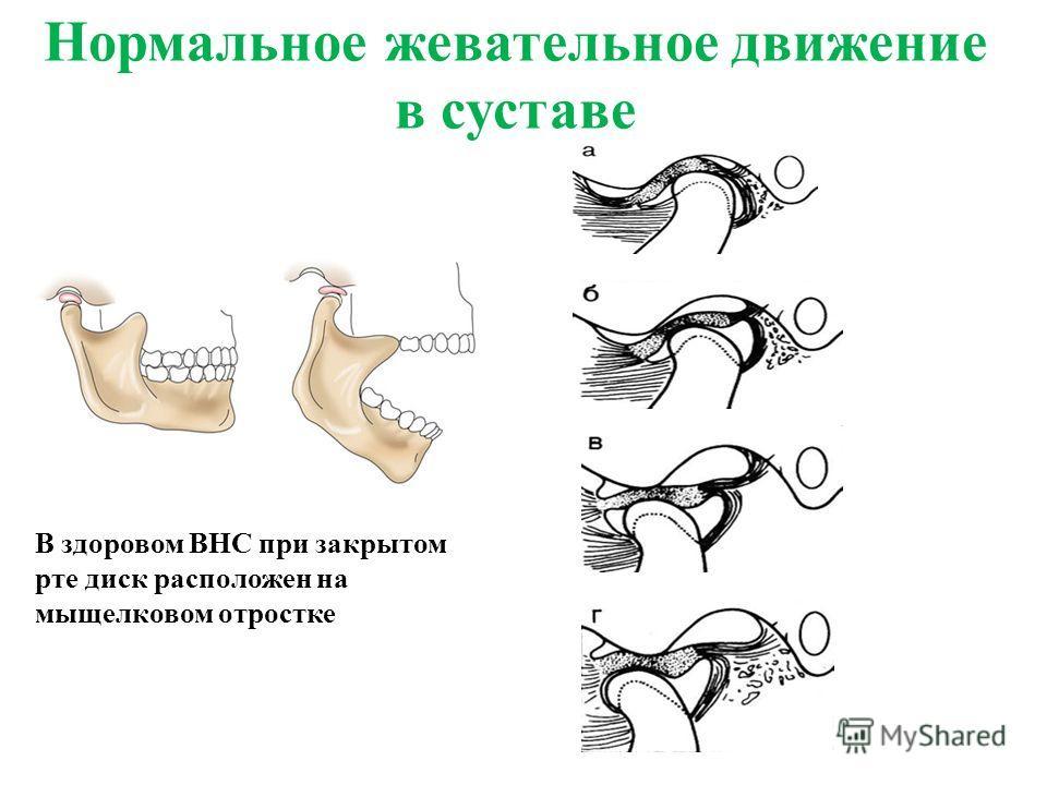 Нормальное жевательное движение в суставе В здоровом ВНС при закрытом рте диск расположен на мыщелковом отростке