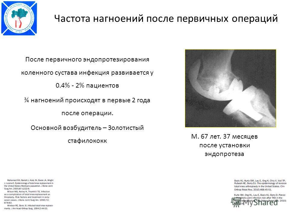 Частота нагноений после первичных операций После первичного эндопротезирования коленного сустава инфекция развивается у 0.4% - 2% пациентов ¾ нагноений происходят в первые 2 года после операции. Основной возбудитель – Золотистый стафилококк М. 67 лет