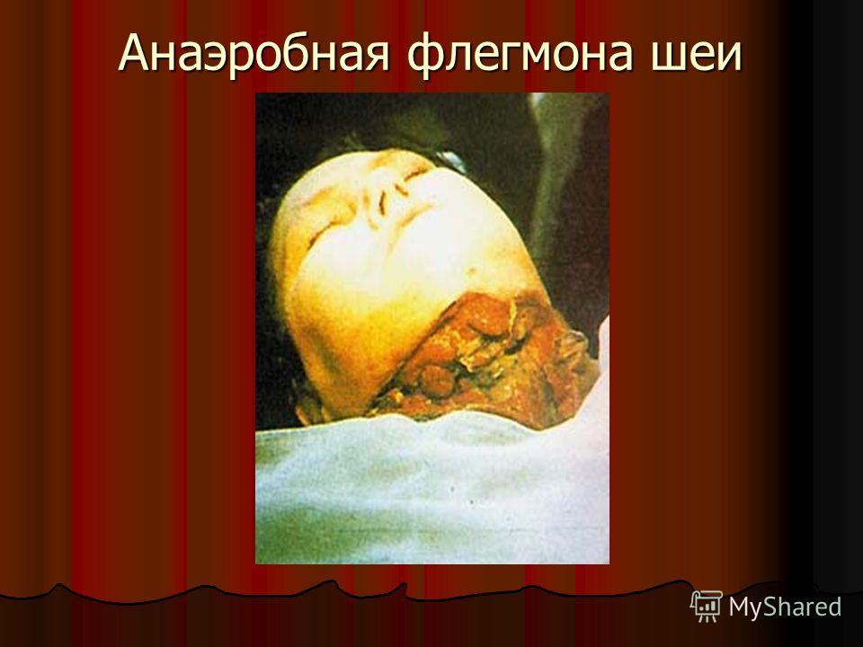 Анаэробная флегмона шеи