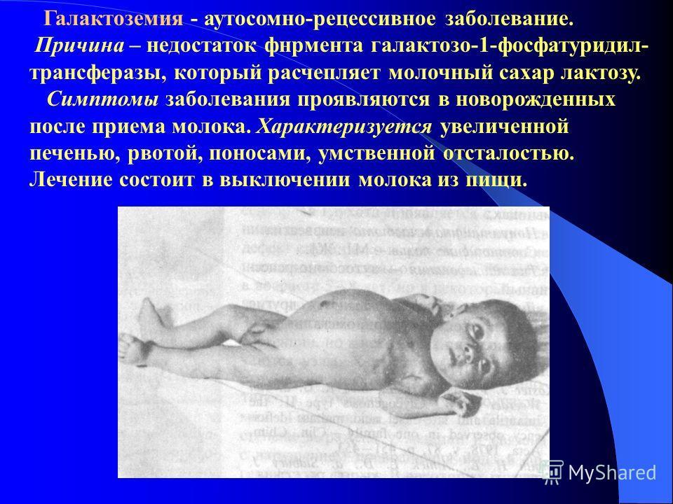 Галактоземия - аутосомно-рецессивное заболевание. Причина – недостаток фнрмента галактозо-1-фосфатуридил- трансферазы, который расчепляет молочный сахар лактозу. Симптомы заболевания проявляются в новорожденных после приема молока. Характеризуется ув