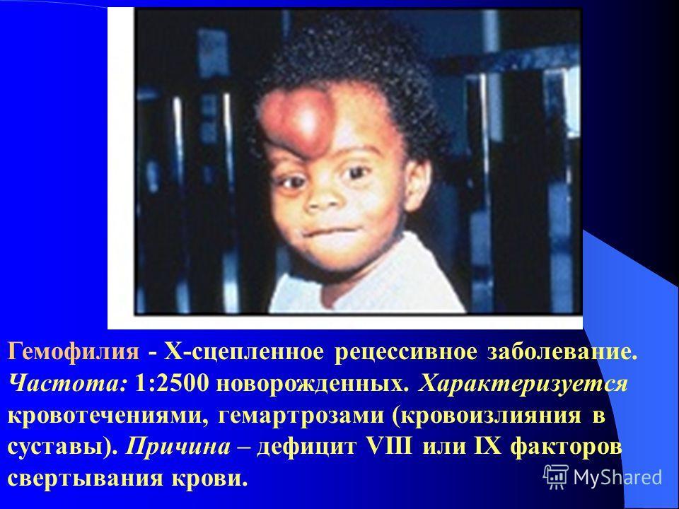 Гемофилия - Х-сцепленное рецессивное заболевание. Частота: 1:2500 новорожденных. Характеризуется кровотечениями, гемартрозами (кровоизлияния в суставы). Причина – дефицит VIII или IX факторов свертывания крови.