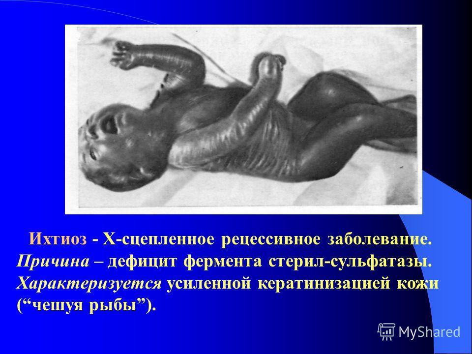 Ихтиоз - Х-сцепленное рецессивное заболевание. Причина – дефицит фермента стерил-сульфатазы. Характеризуется усиленной кератинизацией кожи (чешуя рыбы).